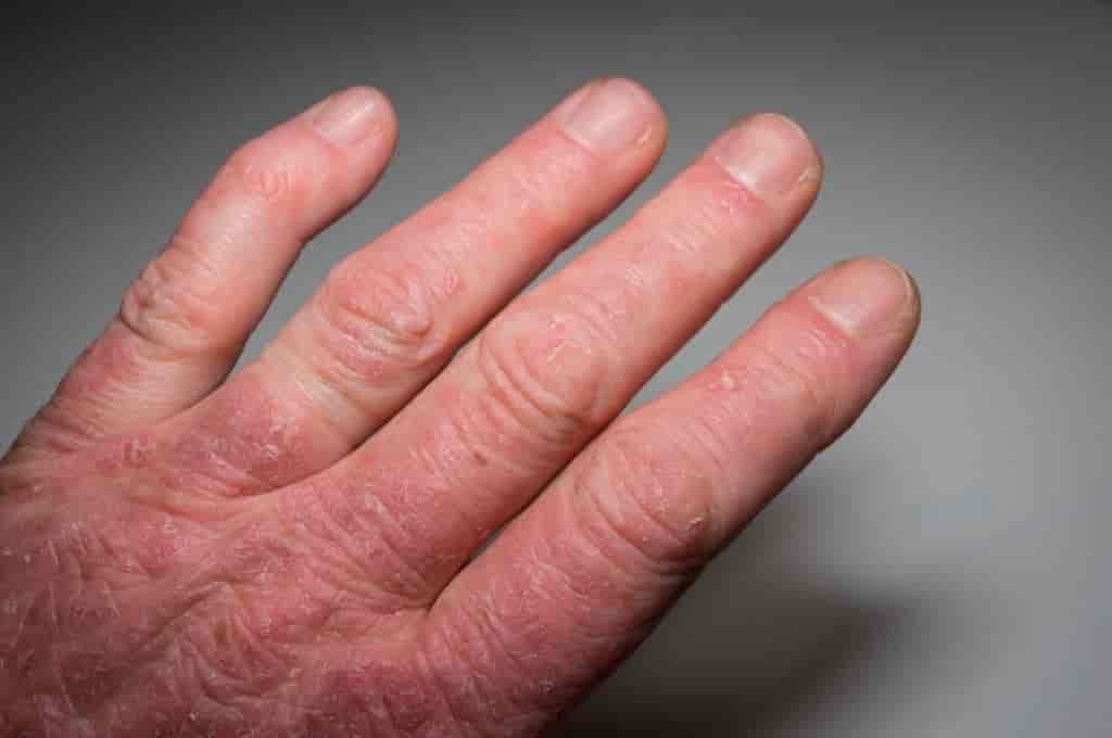 8 Signs of Psoriatic Arthritis